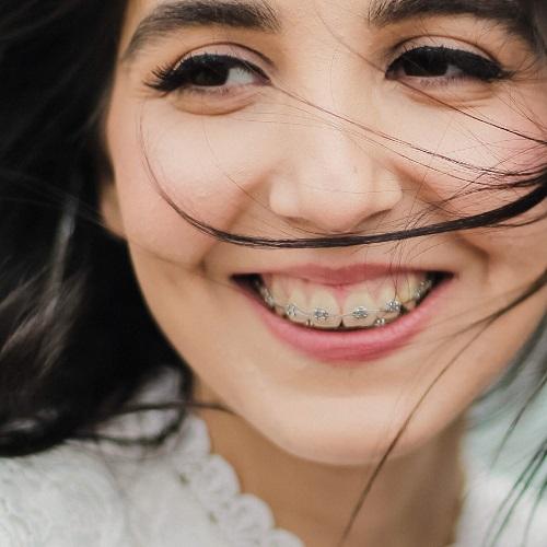 Girl enjoying with dental braces