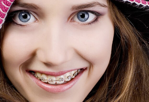 A Detailed Guide on Types of Dental Braces