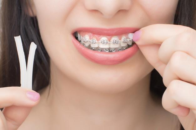 Girl wearing off braces