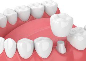 IMG-dental-crown-GettyImages-940971686