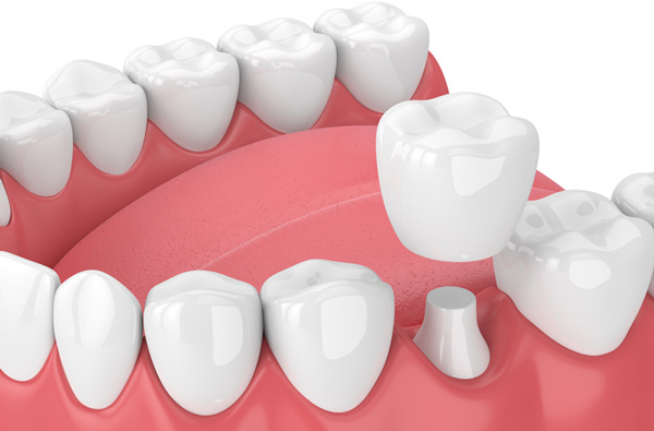 How strong are crowns on Front Teeth