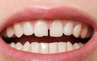 fix the gap in teeth