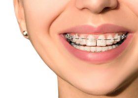 Teeth-Gap-Correction