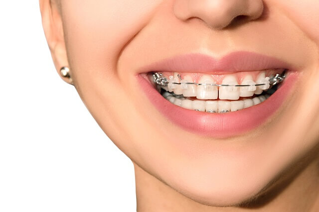 How to fix the gap in teeth | What Causes Gap in Front Teeth?