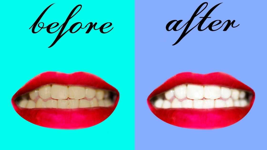 How long does zoom teeth whitening last?
