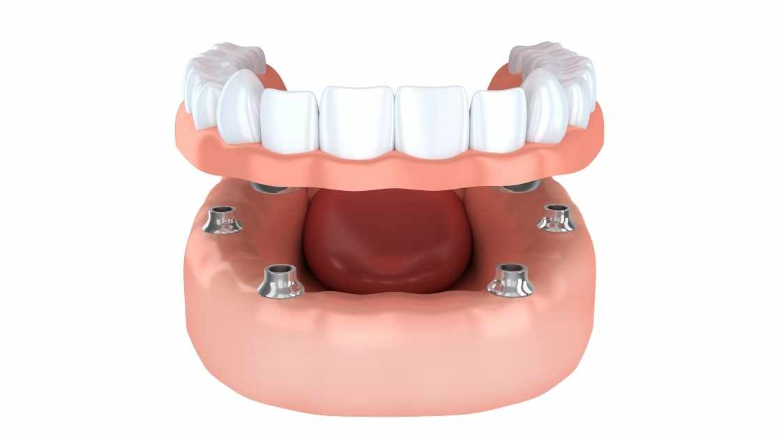 Implant-Supported Overdentures vs. Implant-Retained |