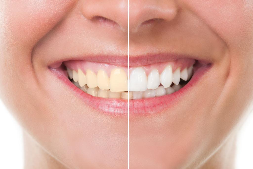The 6 Reasons why Teeth turn Yellow | Remedies
