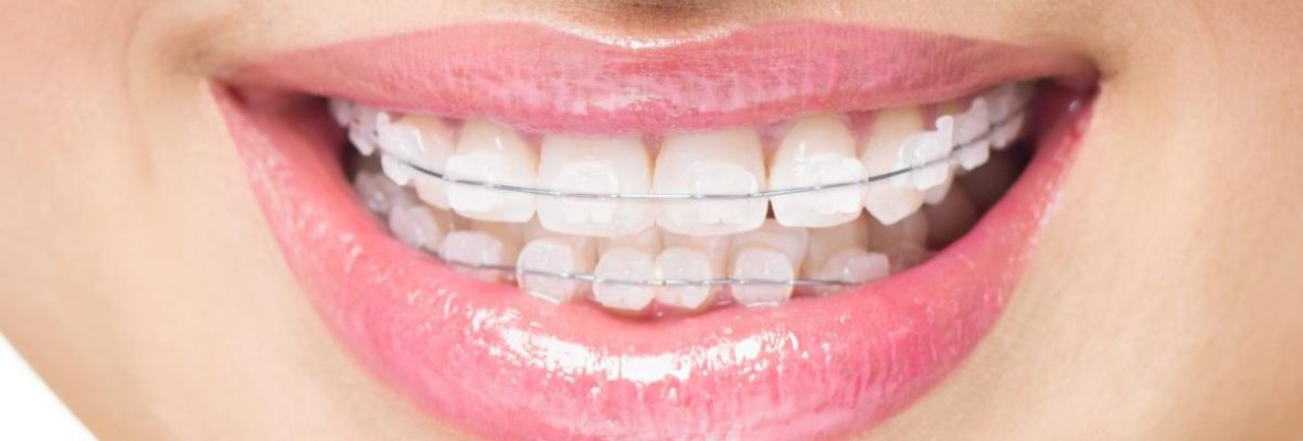 Teeth Straightening Options Explained in Details