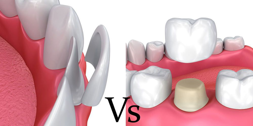 Pros and Cons of Crowns vs Veneers