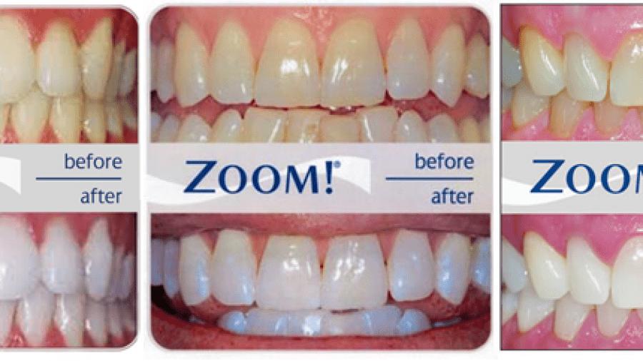 Zoom Teeth Whitening Procedure And Benefits