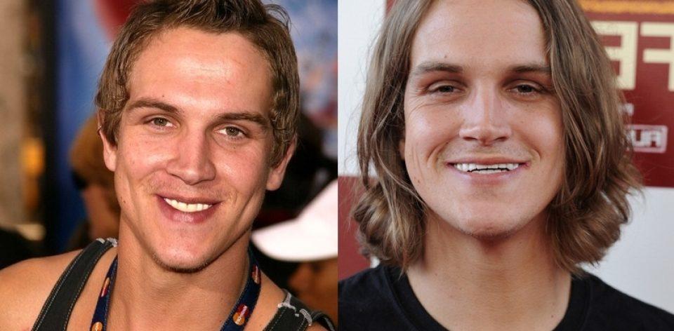 Jason mewes fake teeth