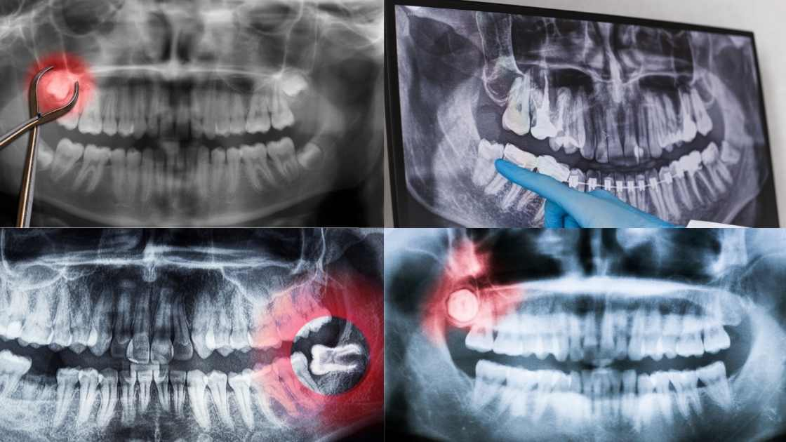 Wisdom Teeth Removal xray