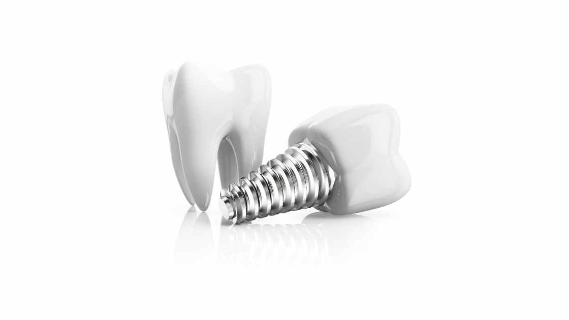 How a dental implant works