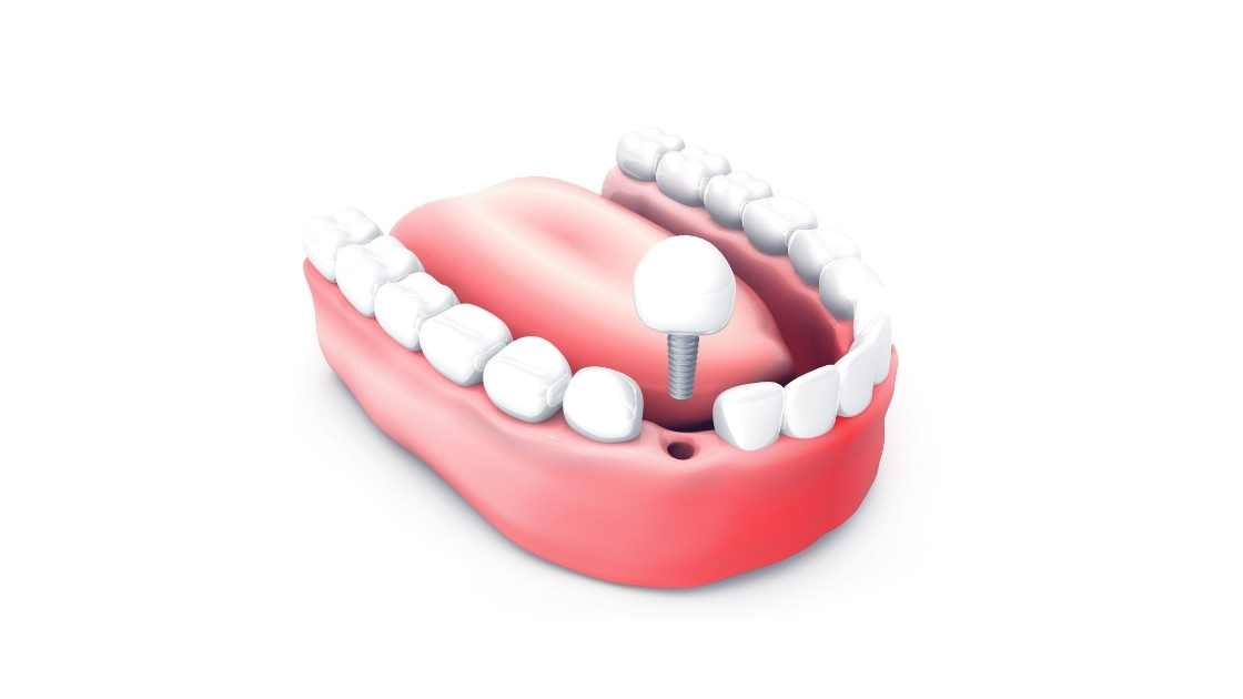 How much is a dental implant?