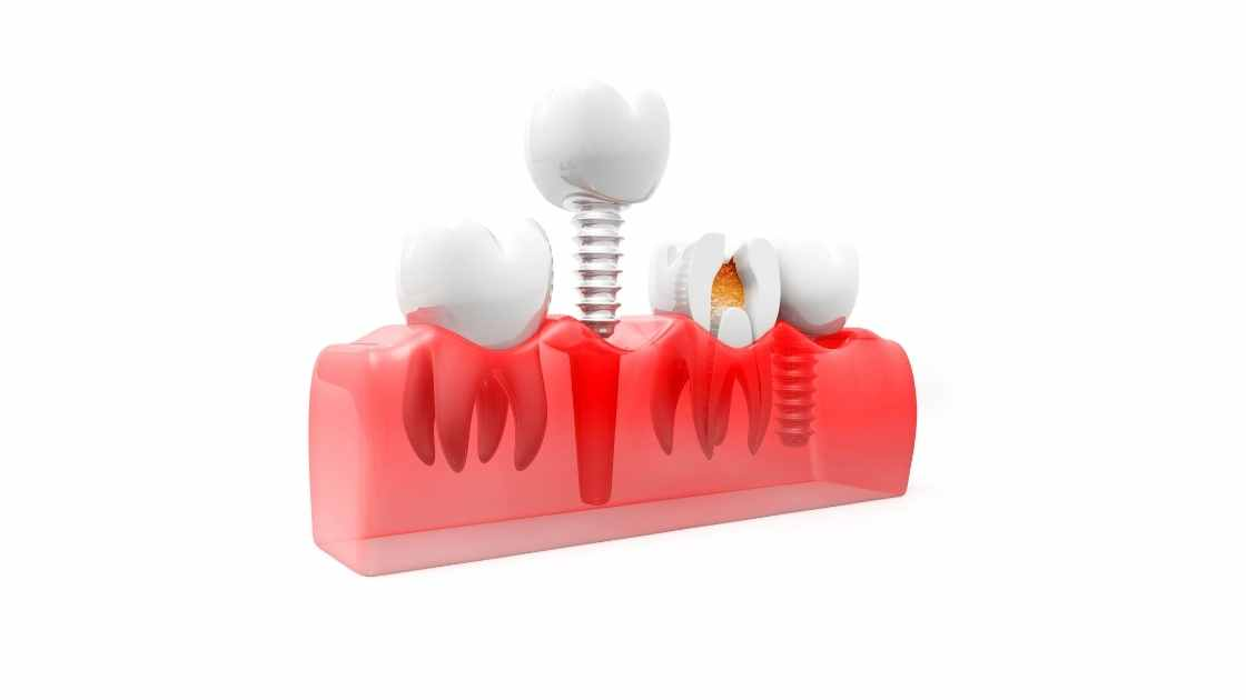 How long does a dental implant procedure take?