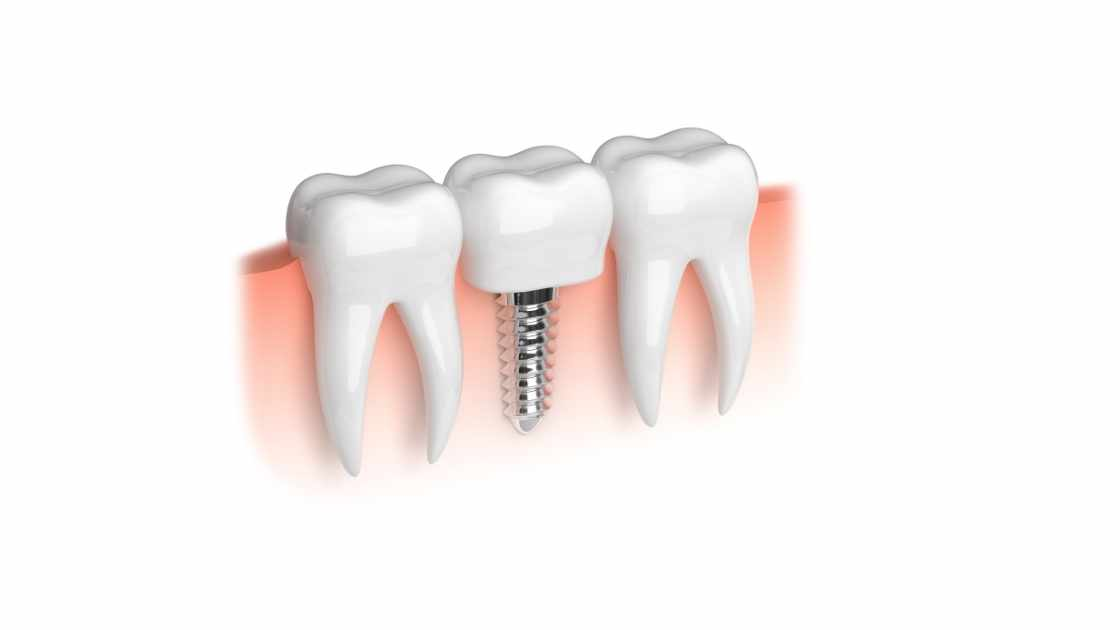 Why you might need a dental implant