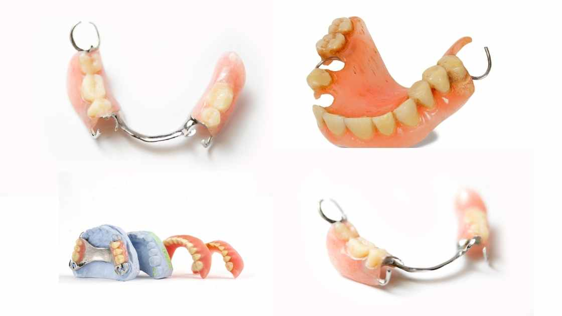 Flipper Tooth (Temporary Partial Denture) All You Need to Know