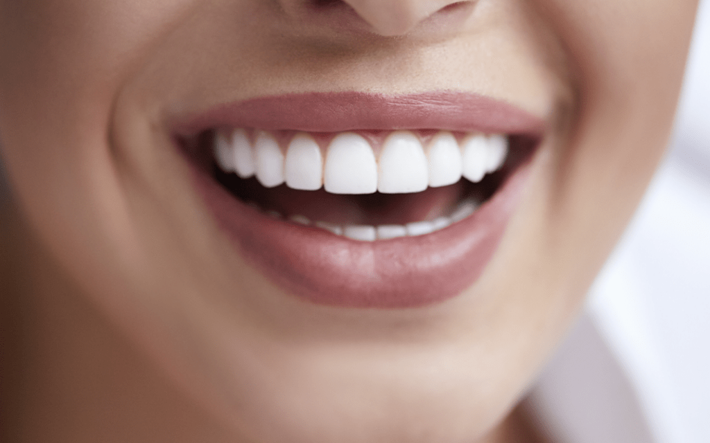 The Different Types of Veneer: Which One is Right for You?