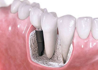 How to get dental implants?