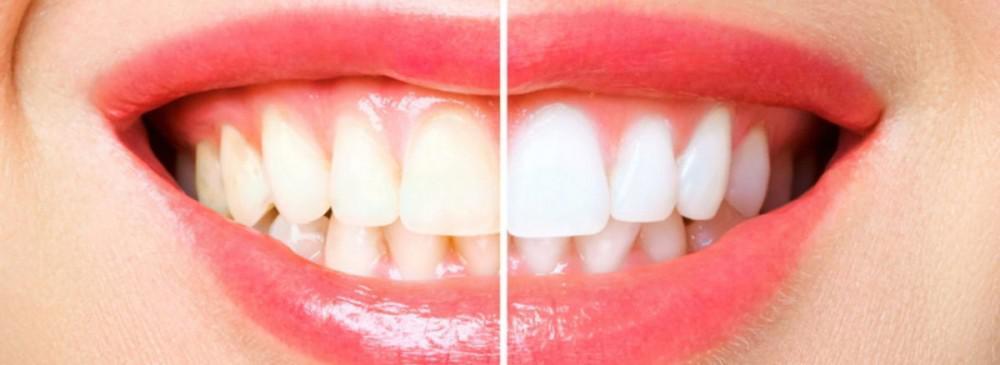 Why You Need Teeth Whitening?