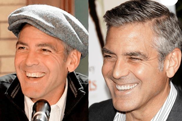 George Clooney with false teeth