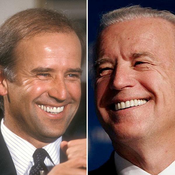 Joe Biden with False Teeth