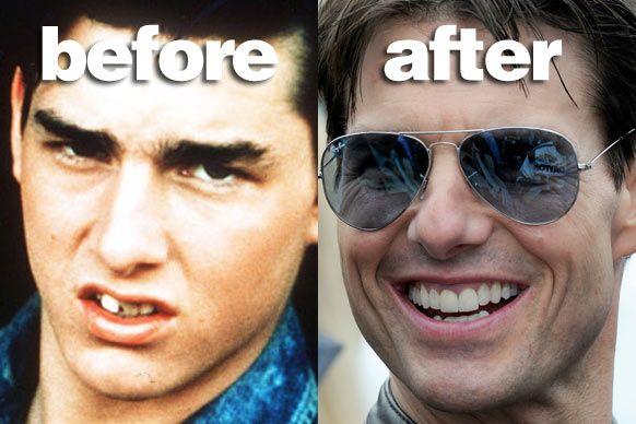 Tom Cruise with False teeth