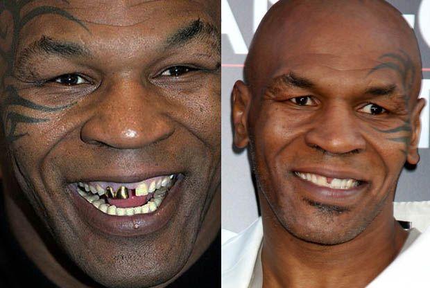 Myke Tyson with False Teeth