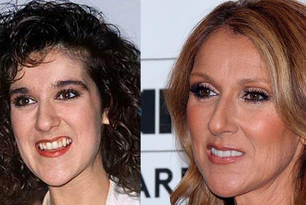 Celine Dion With False Teeth