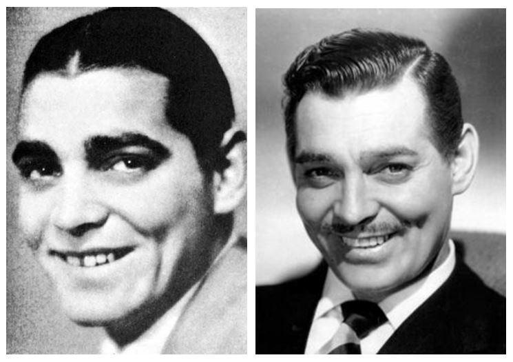 Clark Gable with False Teeth