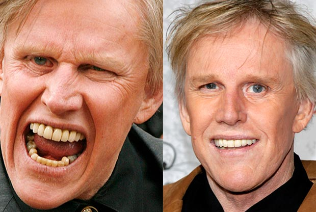 Gary Busey with False Teeth