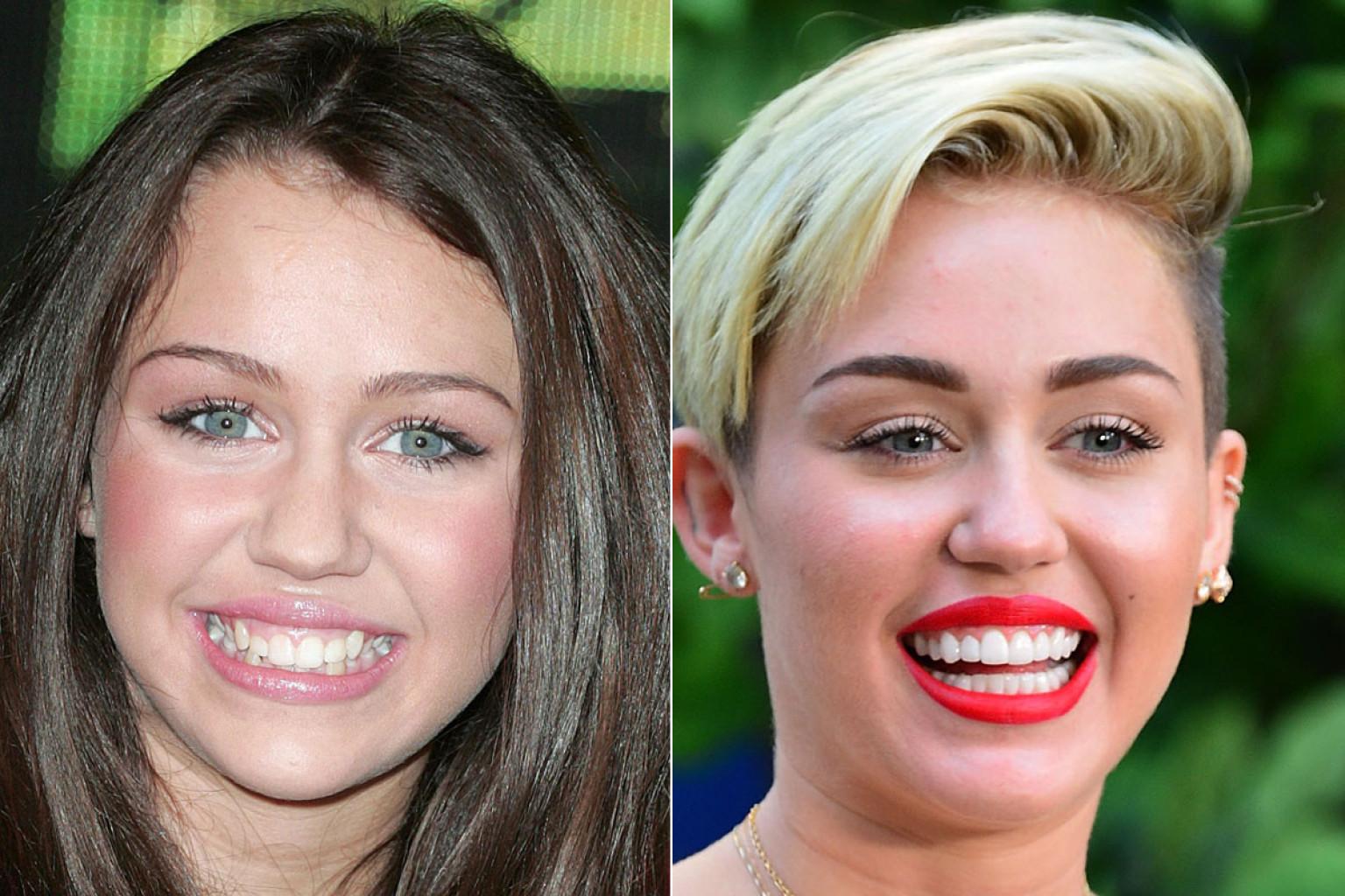 Miley Cyrus with False Teeth