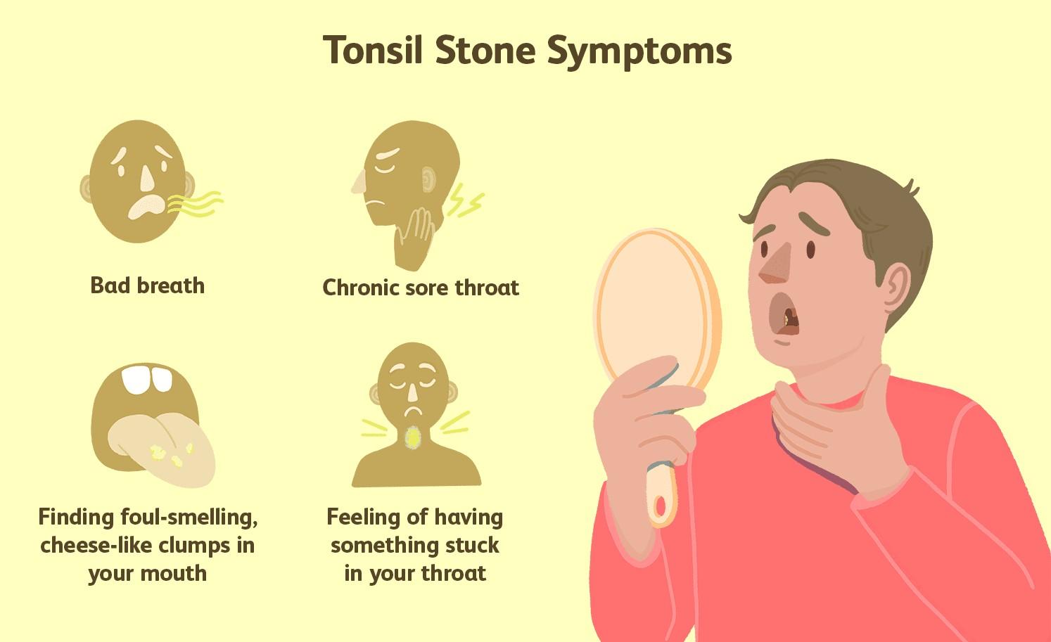 Tonsil Stone Symptoms