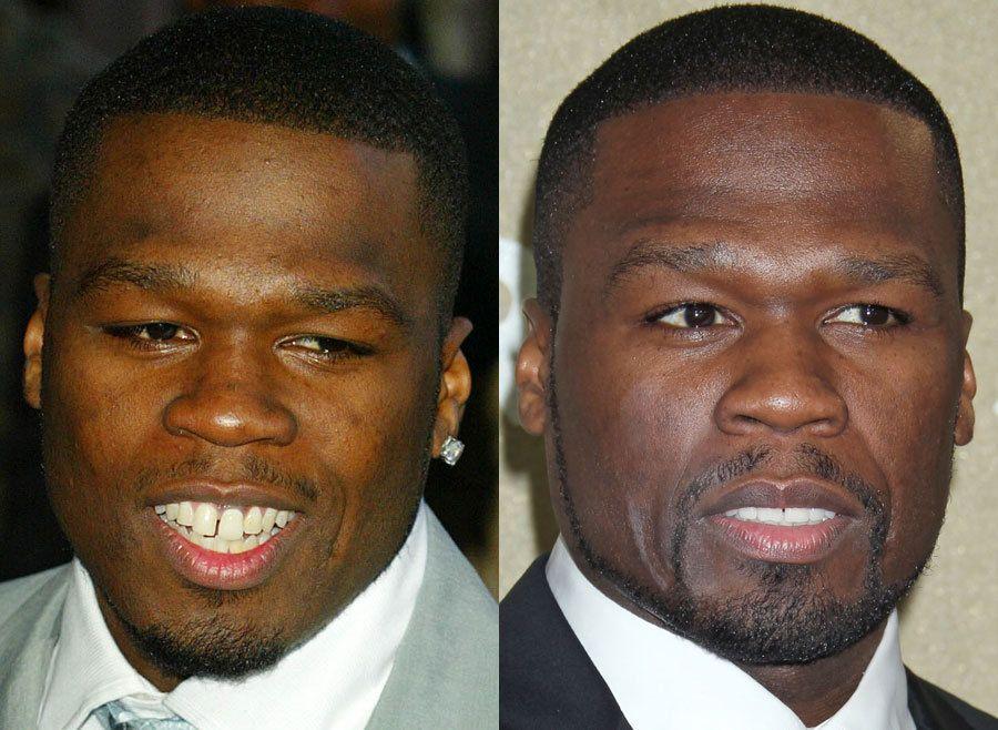 50 Cent with false teeth