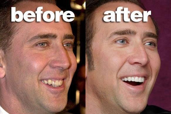Nicholas Cage with False Teeth