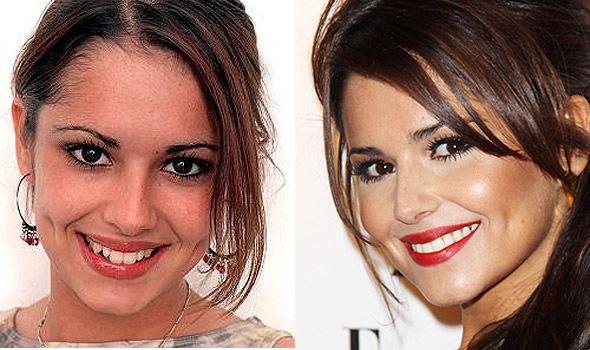Cheryl Cole with False Teeth