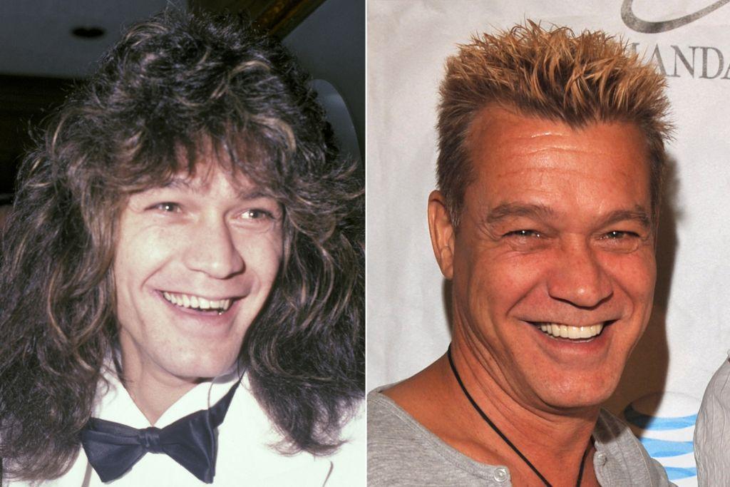 Eddie Van Halen with false teeth