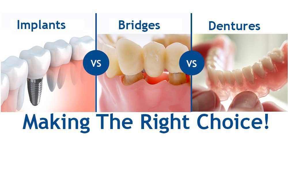 Alternatives of Flipper Tooth