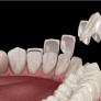 dental-porcelain-veneers-latest-facts-guide-and-costs