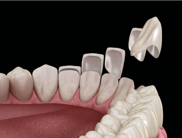 Dental Porcelain Veneers Latest Facts, Guide, and Costs