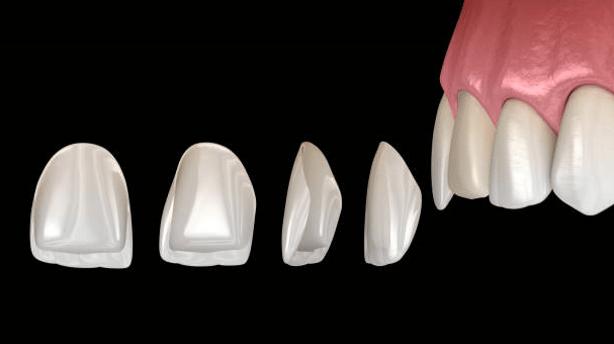 Dental Porcelain Veneer in picture