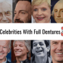 10-celebrities-with-full-dentures