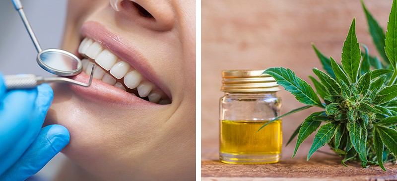 Using CBD Against Onsets of Anxiety in the Dentist's Chair