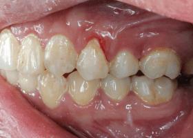 Obsessive-Compulsive Disorder (OCD) Lead to Gum Recession
