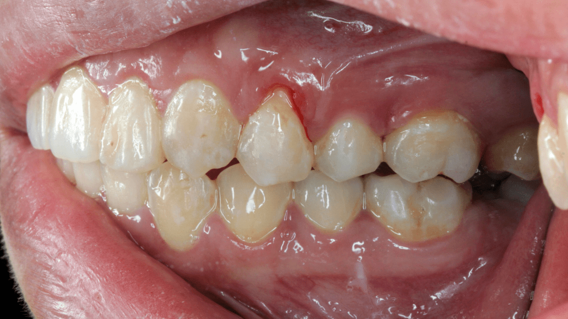 Can Obsessive-Compulsive Disorder (OCD) Lead to Gum Recession?