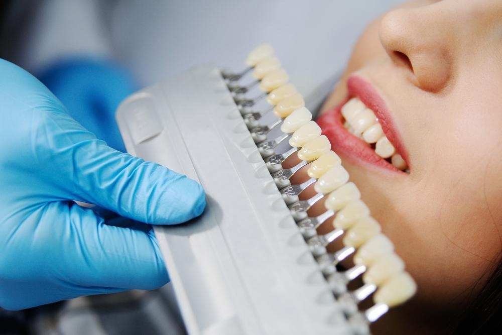 fitting a crown on teeth to improve your smile