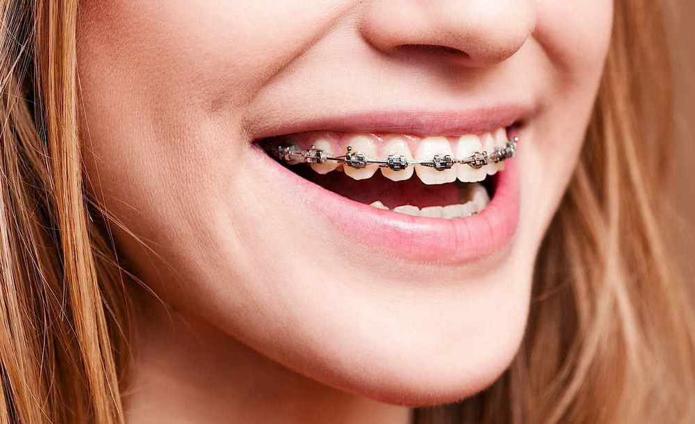 wearing braces to improve your smile