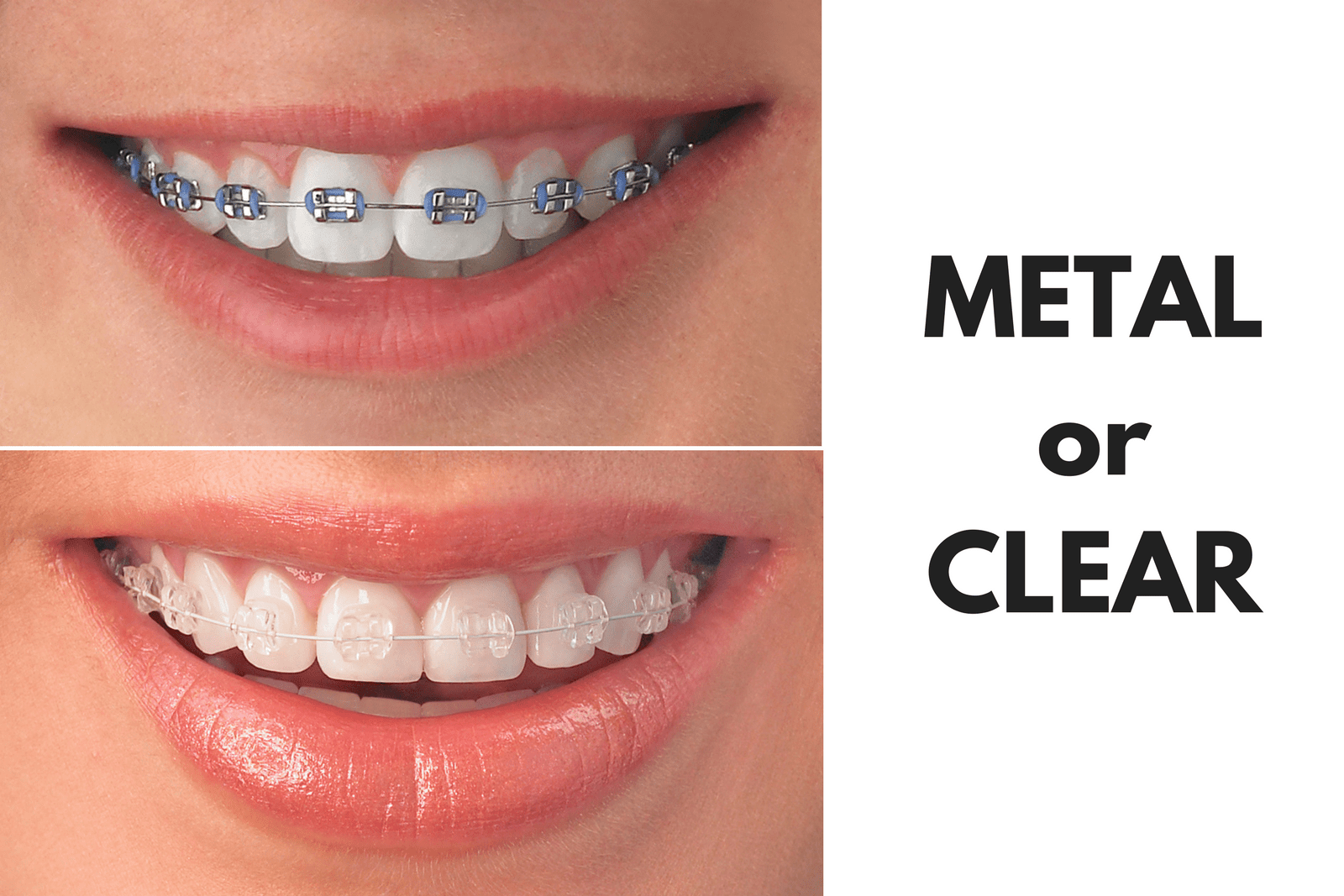 Metal or Clear Braces