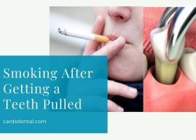 Smoking After Getting a Teeth Pulled