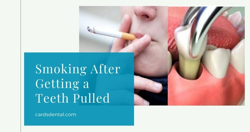 What Happens if You Smoke After Getting a Tooth Pulled?